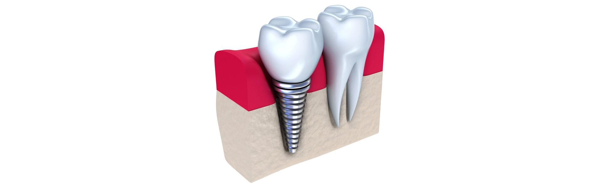 Implants in Waterford, MI