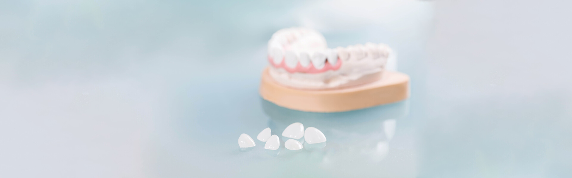 A Guide to Dental Veneers and How to Use Them